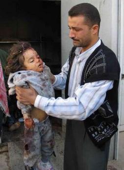 iraqi-war-child.jpg